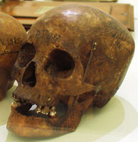 Skull of an Indigenous person held in a museum's collection.